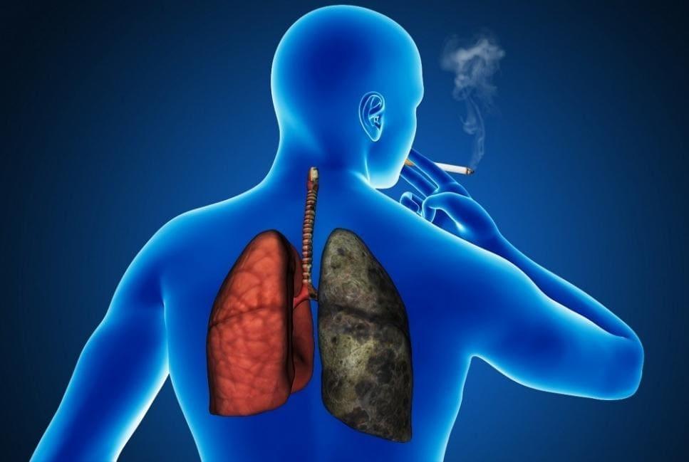 Хваробы лёгкіх