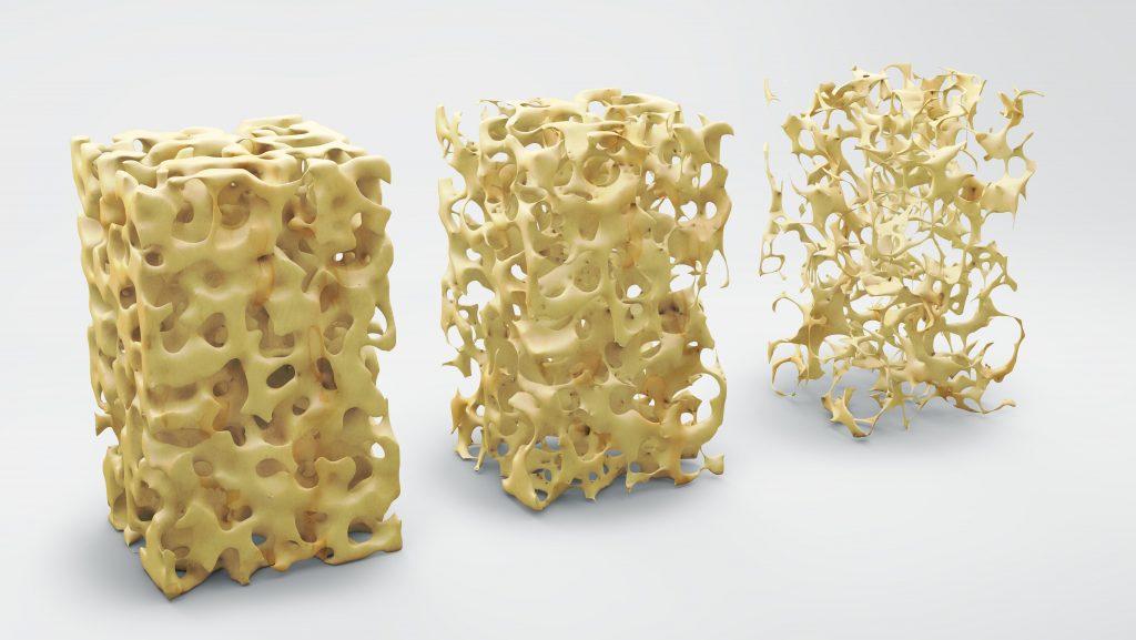 Калаген. Мінеральная шчыльнасць косці.