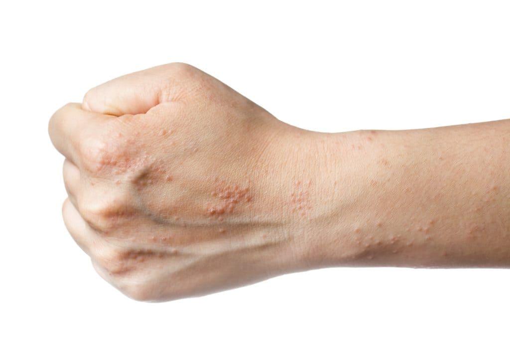 Везикулезный дерматоз. Высыпания.