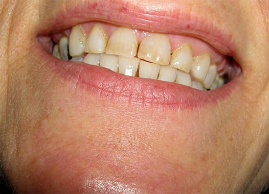 Зубы псуюцца. Сцёртая эмаль.