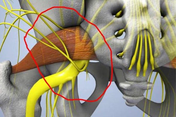 Запалення сядалішчнага нерва. Грушападобная мышца.
