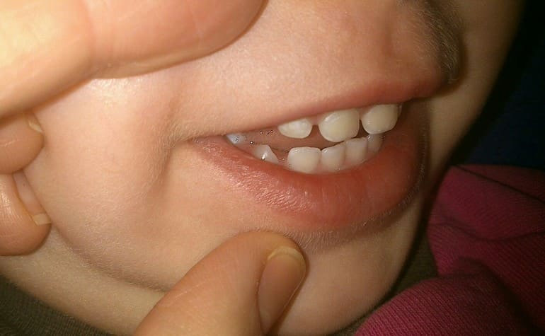 Стаматалогія. Праблема з дзіцячымі зубамі. Белыя плямы.