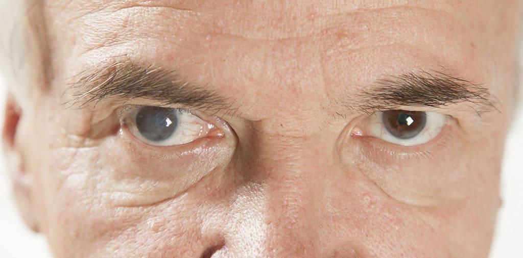 Катаракта. Прыкметы катаракты.