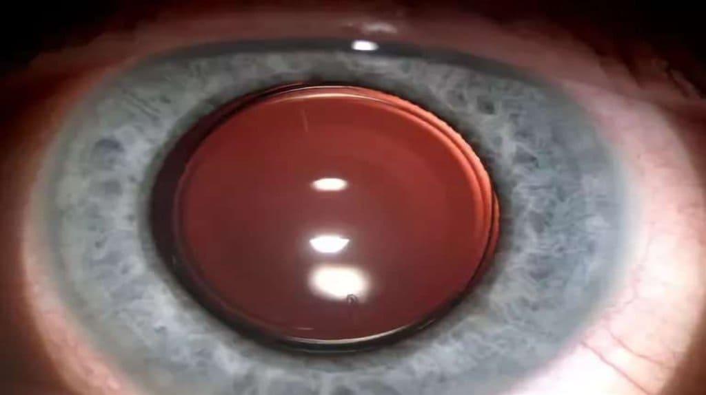 Глаўкома. Другасная катаракта.