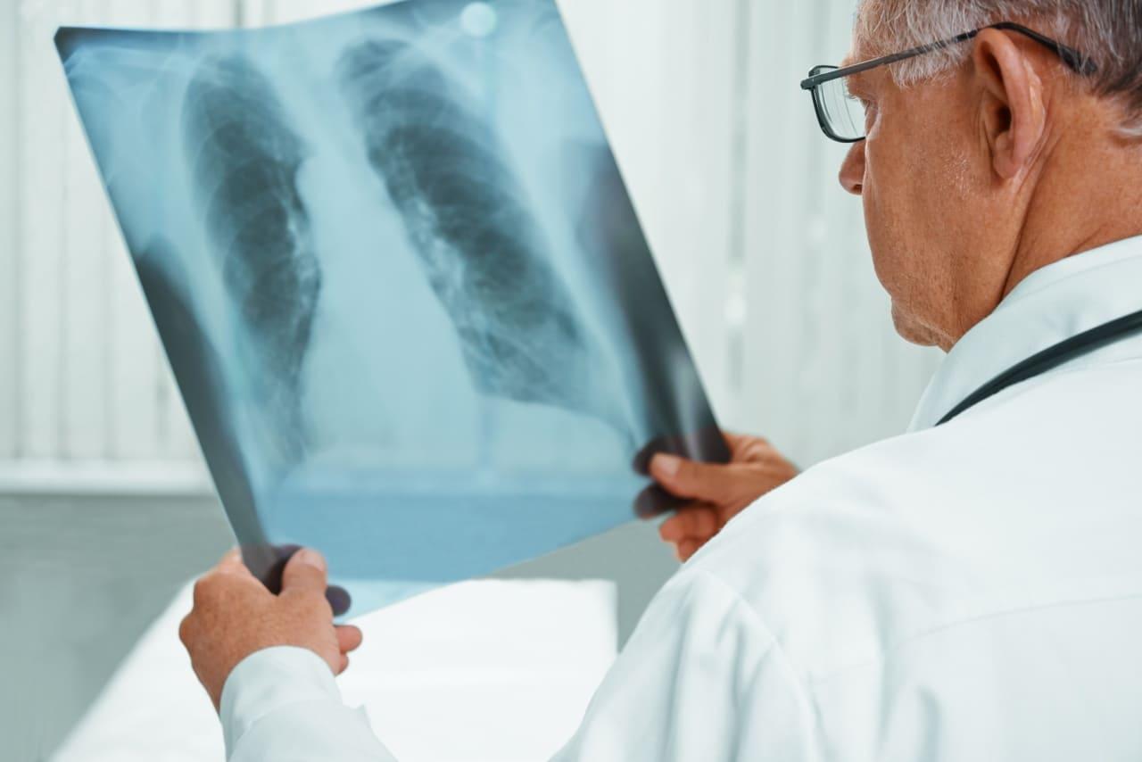 Туберкулёз. Поспехі ў лячэнні туберкулёзу