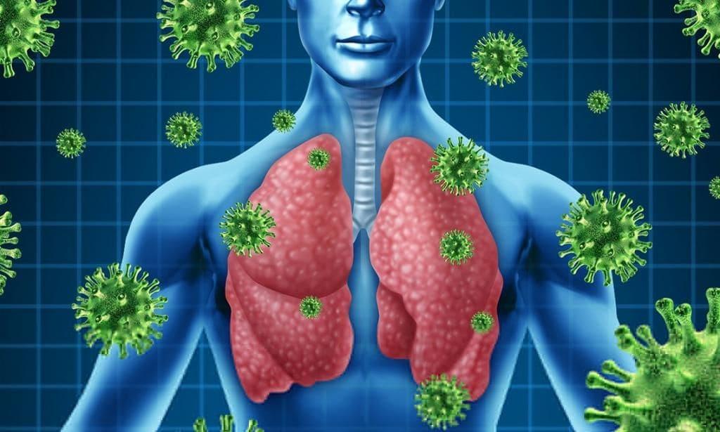 Туберкулёз. Хворыя на туберкулёз і каранавірус