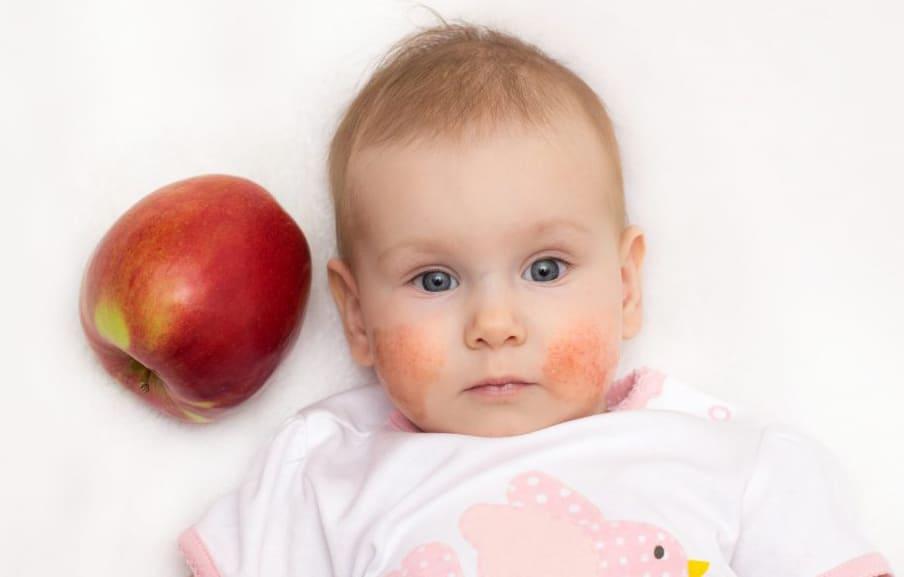 Яблык. Алергія ў дзяцей на яблыкі.